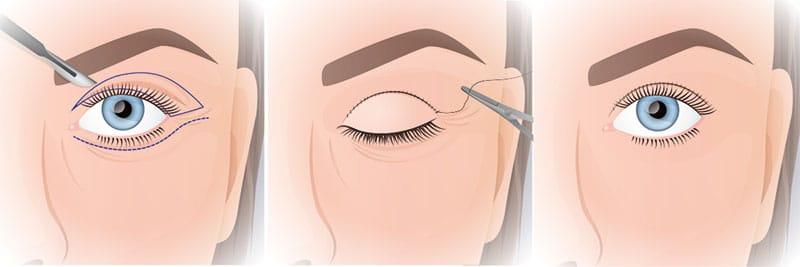 Schematische Darsellung einer Augenlidkorrektur